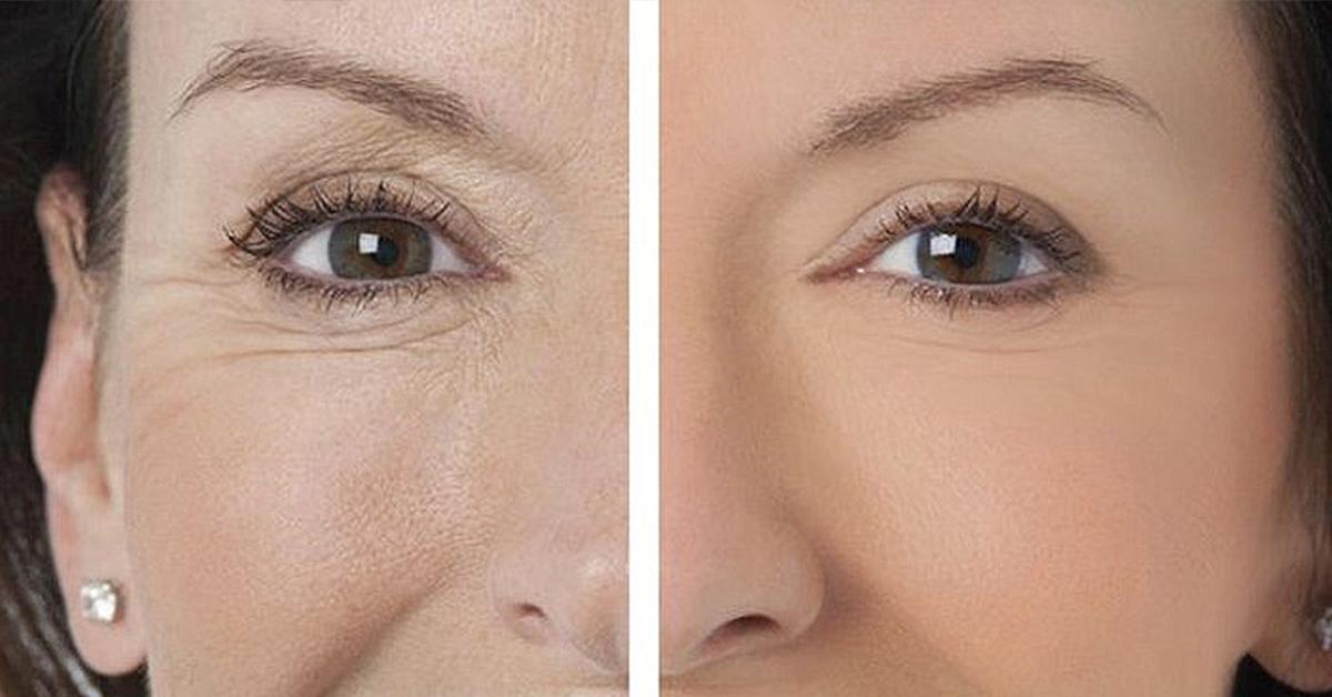 Убираем морщины вокруг глаз в домашних условиях отзывы 134