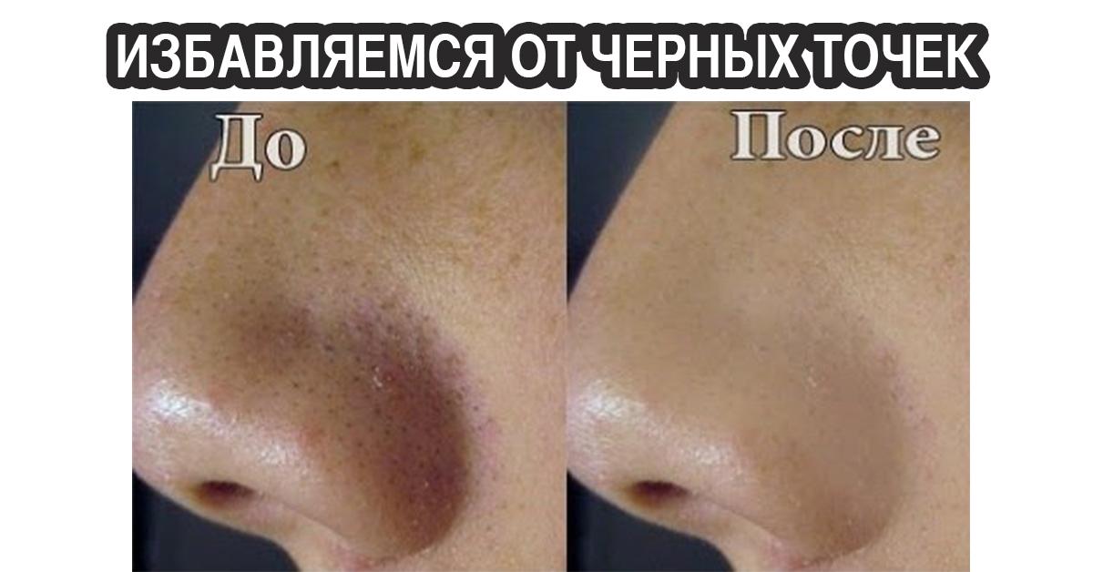 Как удалить черный точки с носа в домашних условиях
