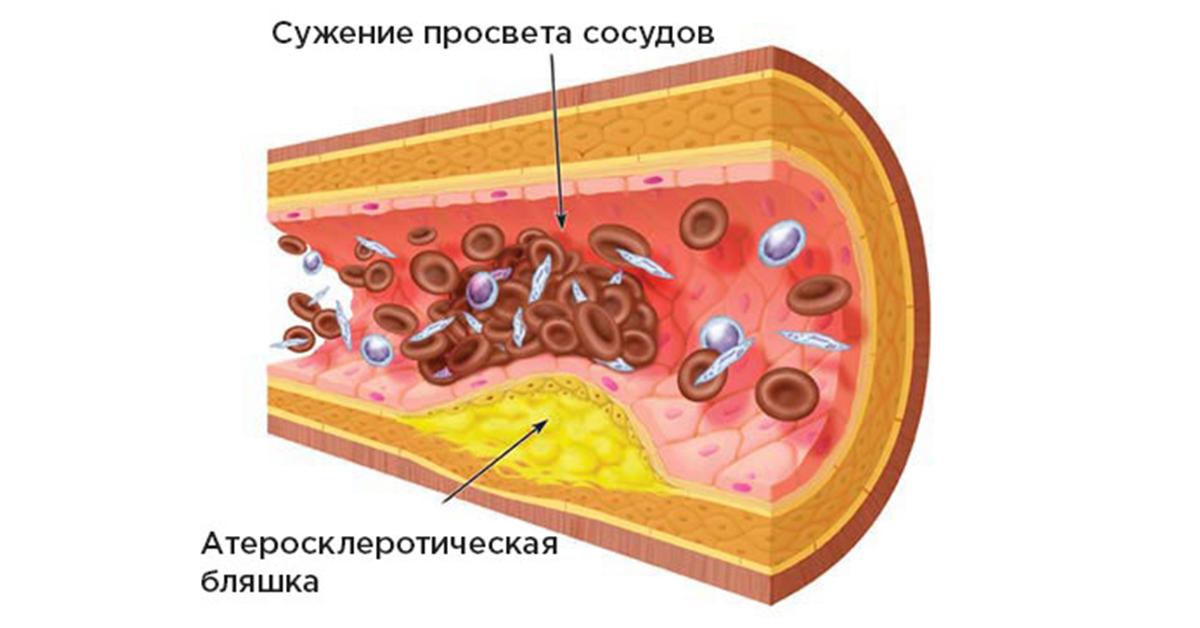 содержание холестерина в крови норма