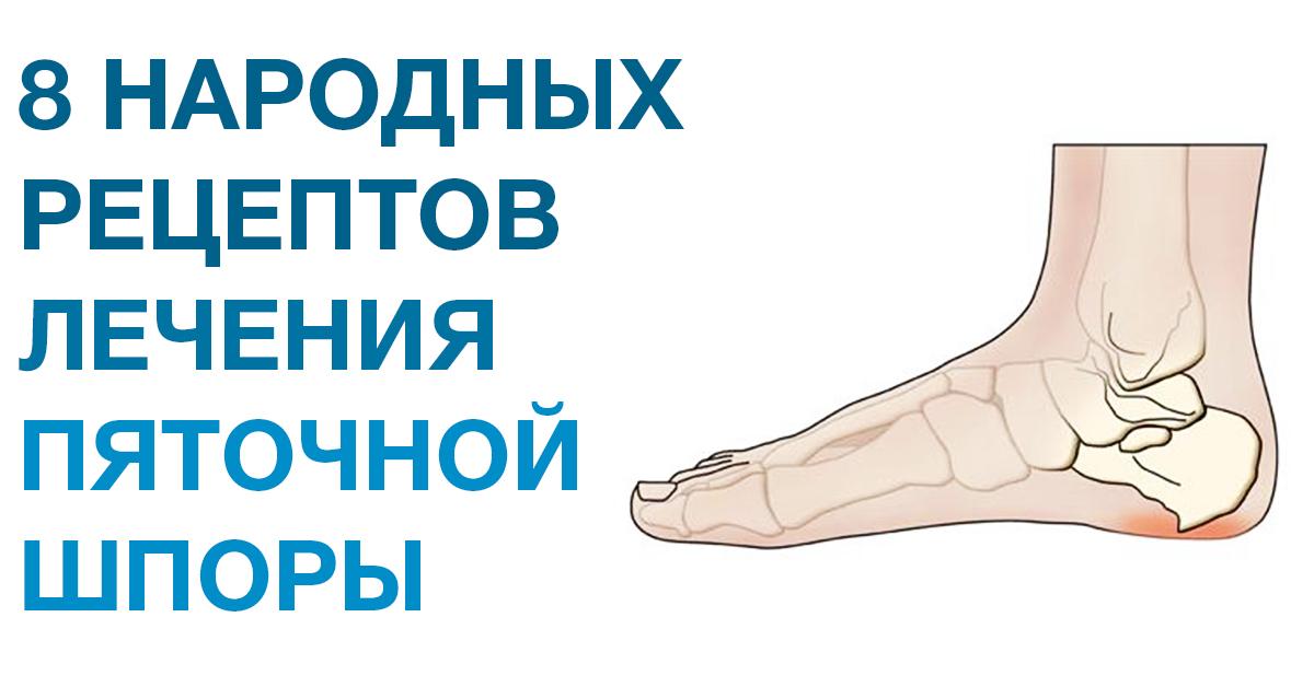 Чем вылечить шпоры на ногах в домашних условиях