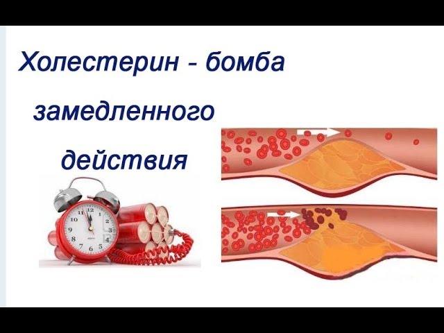 красноярск анализ крови на паразитов центр спид