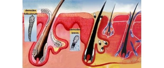 Лечение головной боли при повышенном внутричерепном давлении