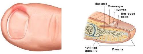 Как лечить палец на ноге если он опух и гноится