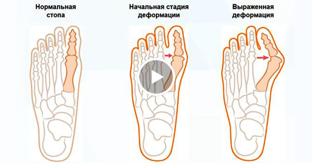Как снять боль в косточке большого пальца ноги