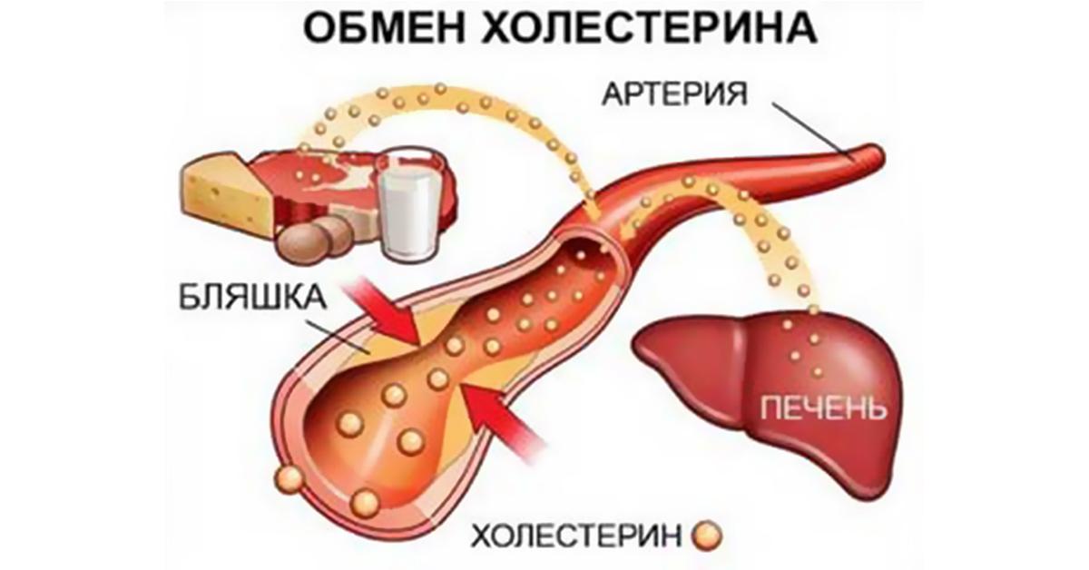 холестерин в крови 11