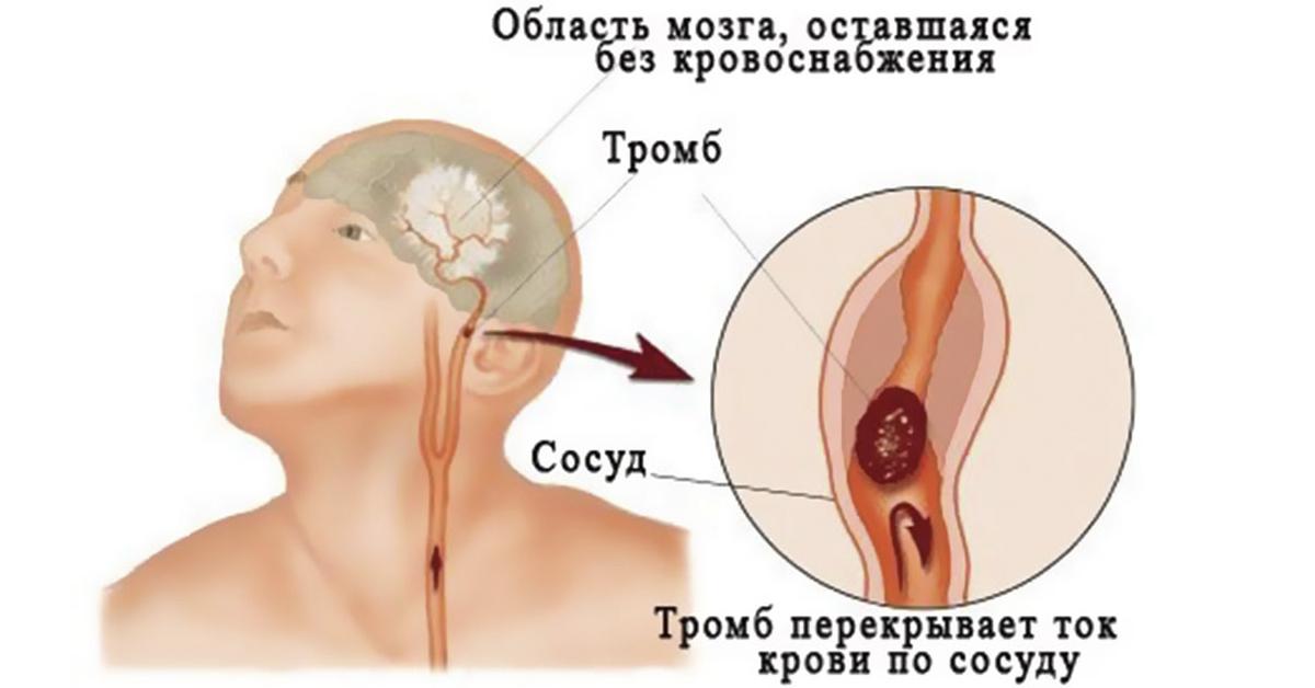 Лечение псориаза в домашних условиях (видео Елены.)