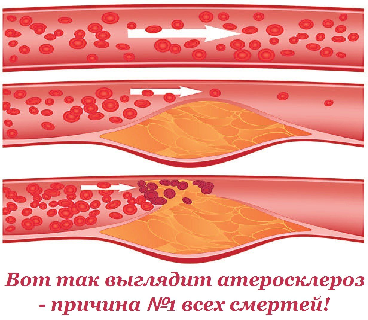 сало от холестерина в крови