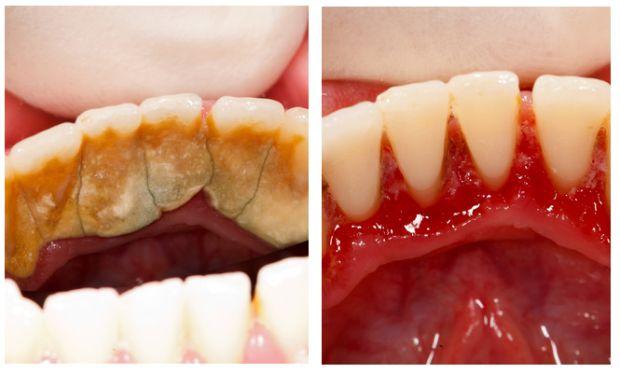 Как снять камень на зубах в домашних условиях