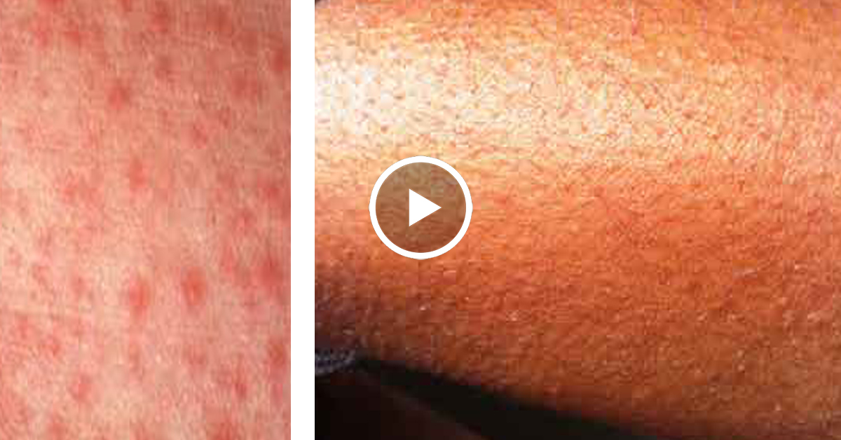 Пигментные пятна на коже чем лечить 160