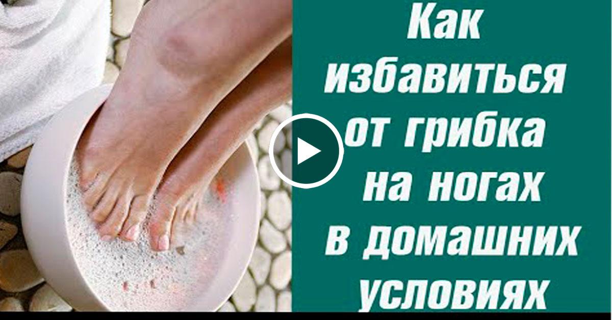 Как быстро избавиться от грибка на ногах в домашних условиях быстро