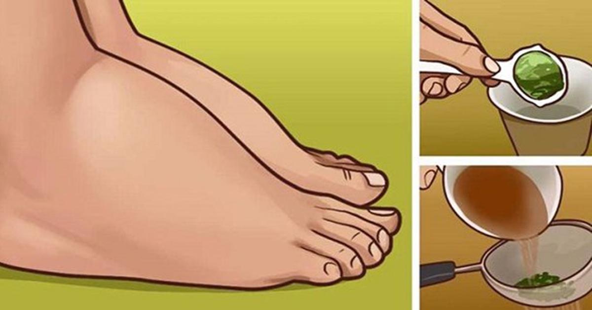 Как в домашних условиях снять опухоль ноги