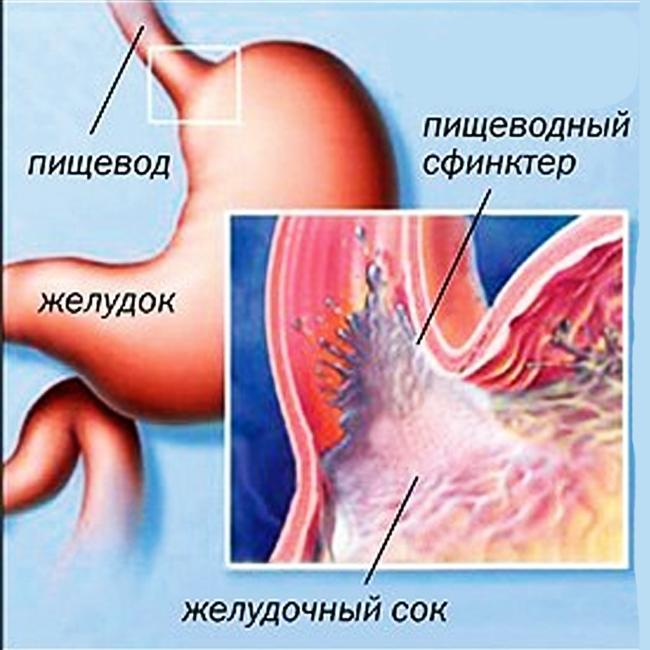 Повышенная кислотность желудочного сока как лечить
