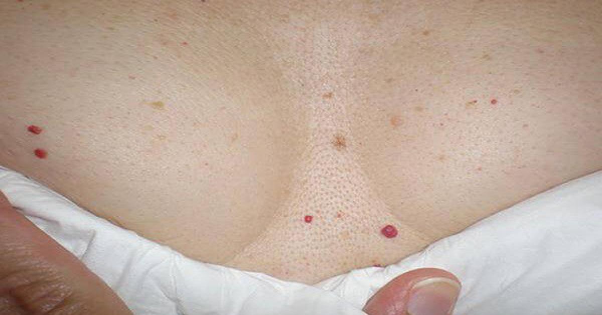 458Потемнения на коже под грудью