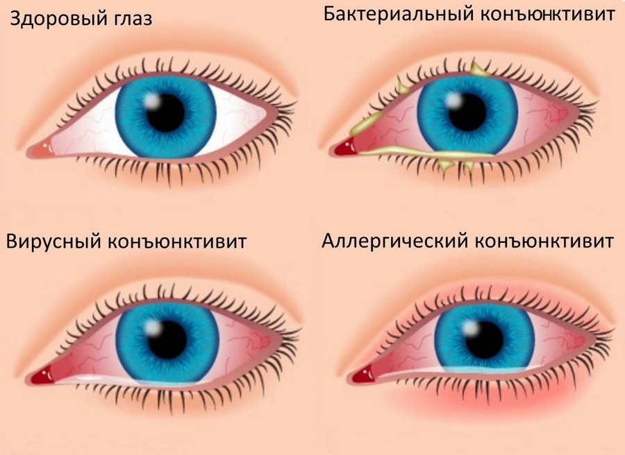 От покраснения глаз в домашних условиях