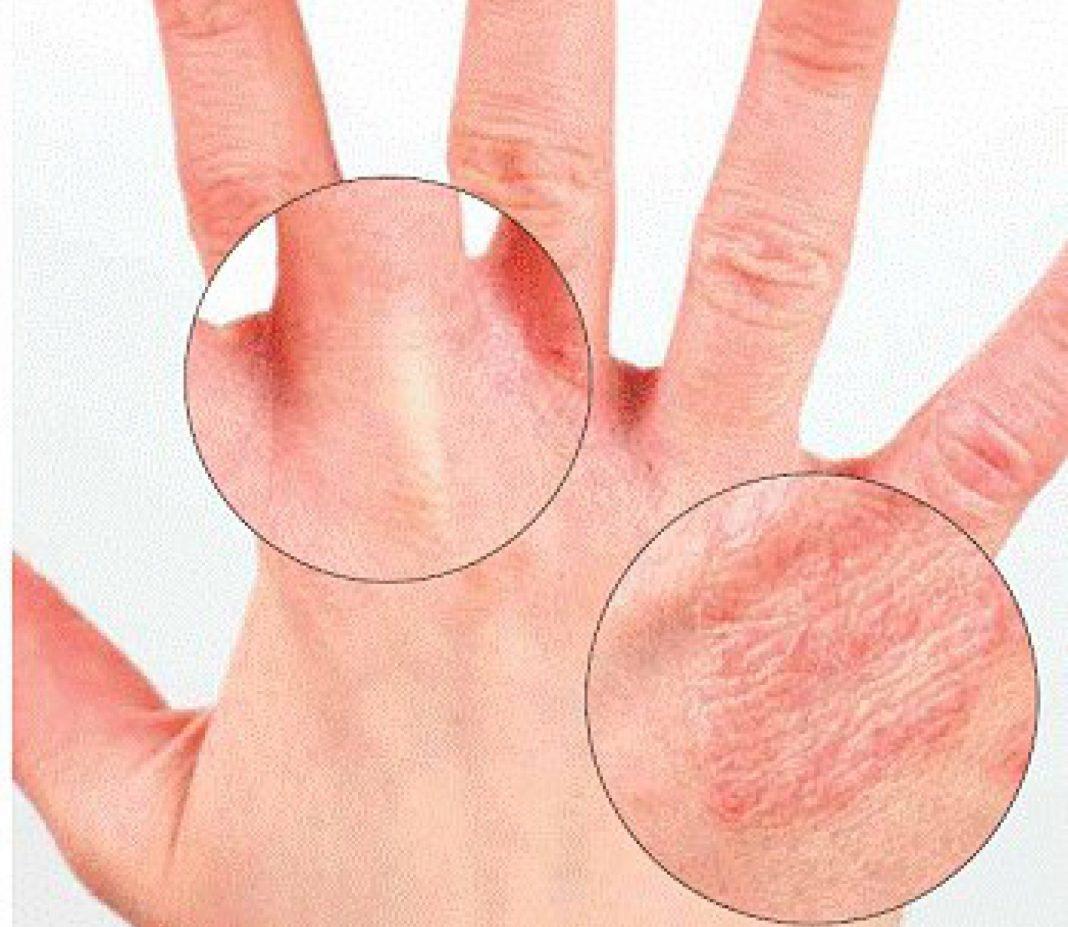 Сохнет кожа между пальцев на руках причины