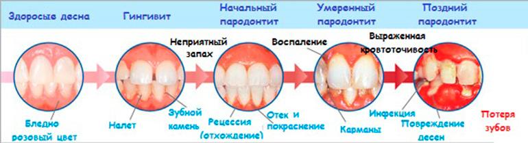 Покраснела десна вокруг зуба не болит