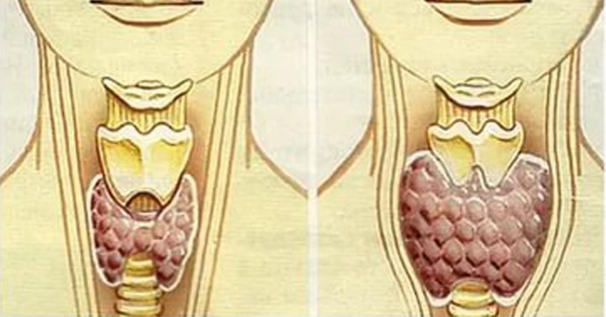 Как вылечить щитовидную железу в домашних условиях быстро