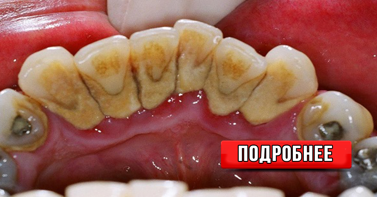 Откалываются камни на зубах