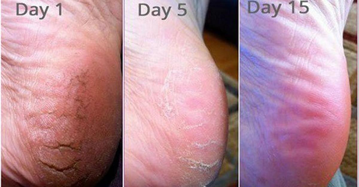 Почему трескаются пятки и как лечить трещины