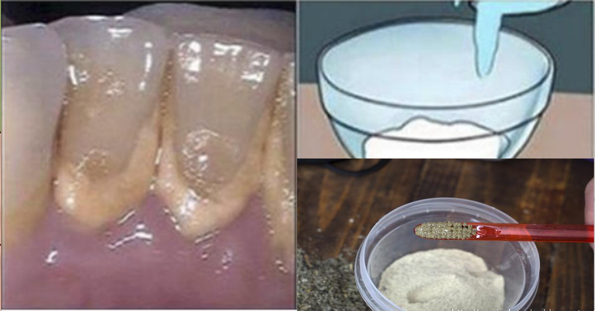 Как сделать соду для полоскания зубов