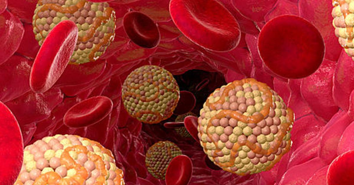 Вывести холестерин народными средствами
