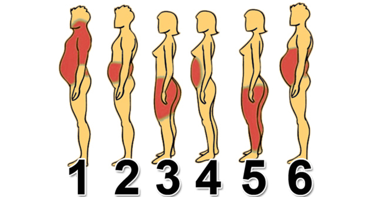 6 причин ожирения и пути их решения