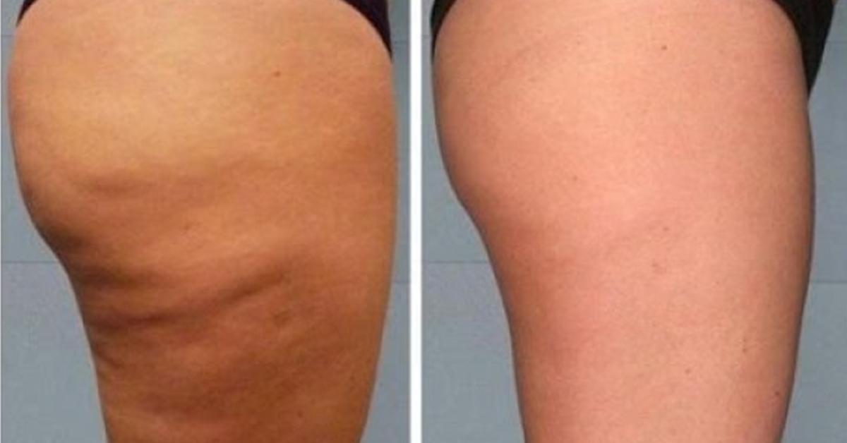 Криотерапия - Помогает безболезненно похудеть! Отзывы