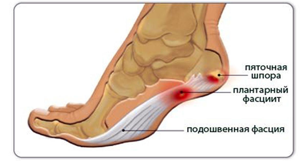 Лечение народными средствами косточки на ноге
