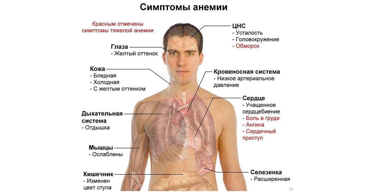 Сердца болезни какой является худоба признаком