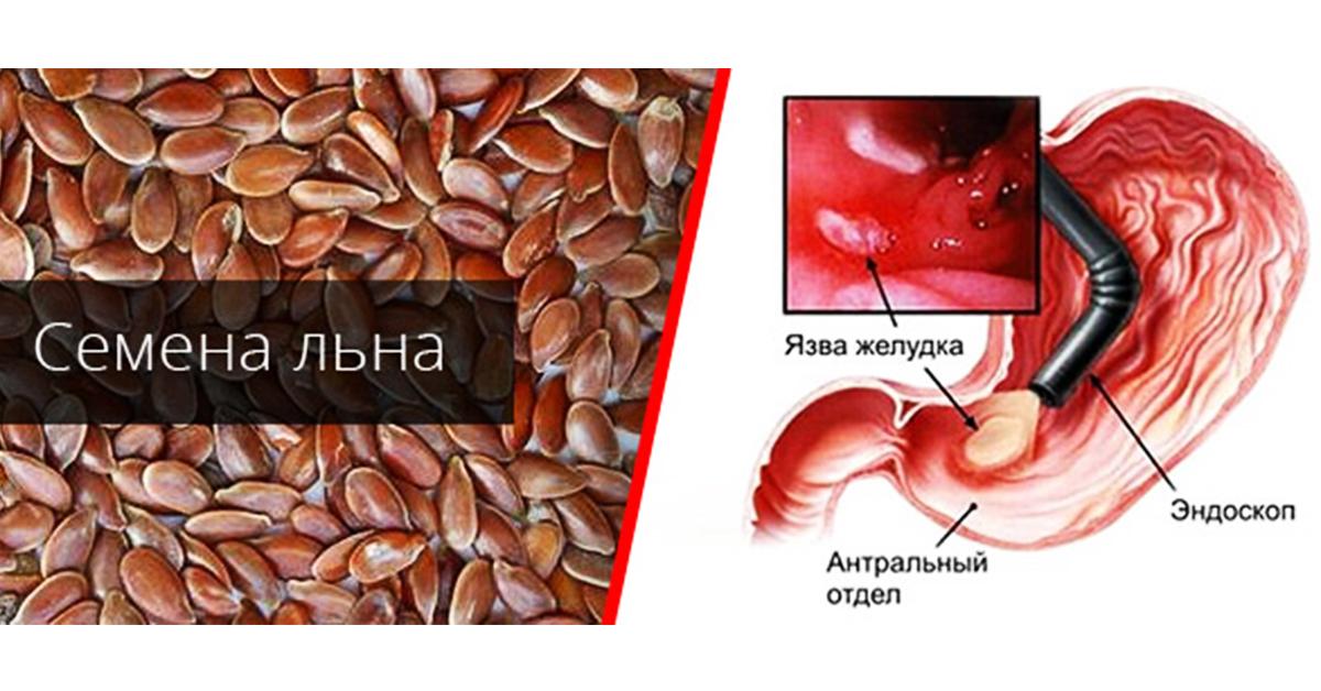 очистка желудка от паразитов