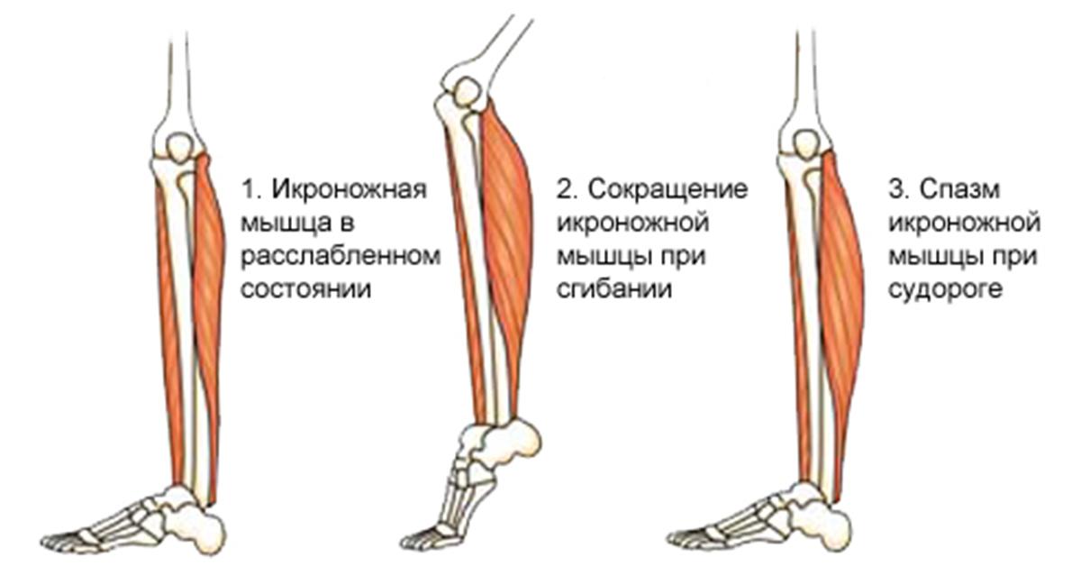 Сокращение всех мышц ночью причины