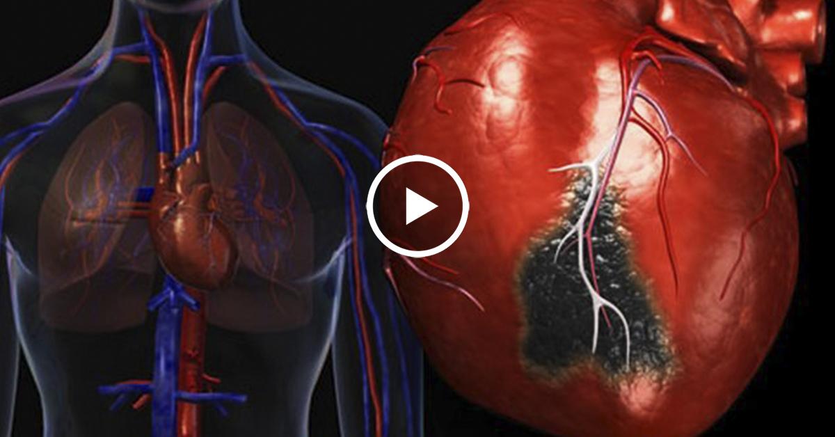 Признаки инфаркта - нужно знать каждому!