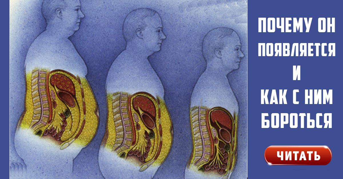 почему растет жир верхней части живота