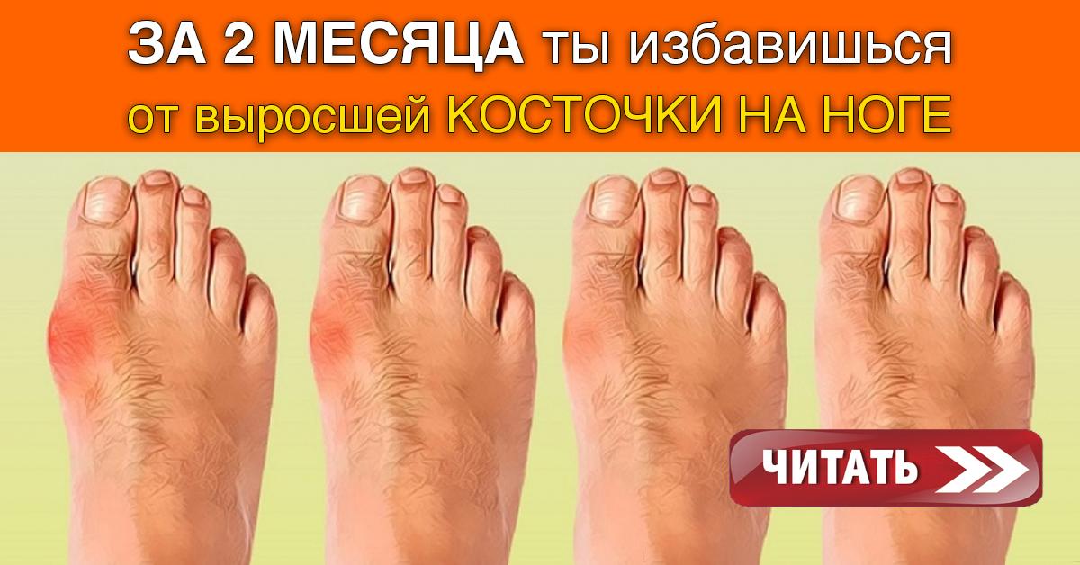 Ортопедические средства от косточек на ногах