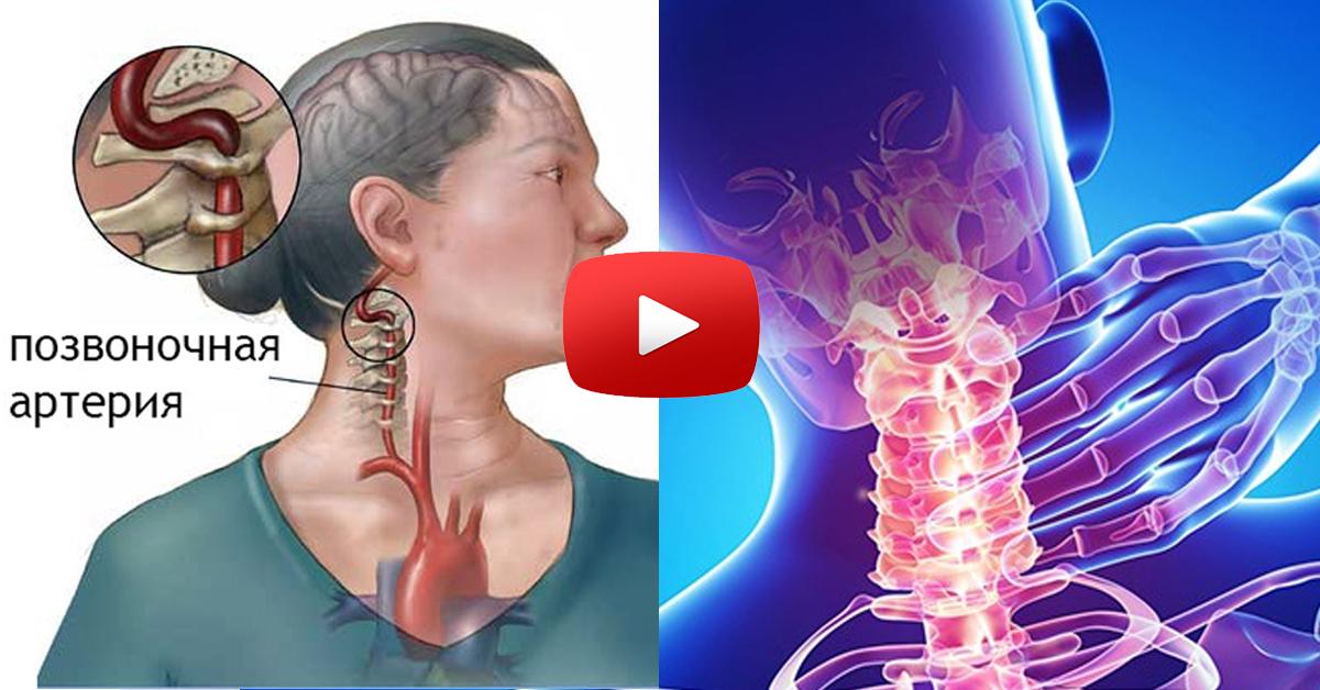Шейный остеохондроз синдром позвоночной артерии лечение препараты