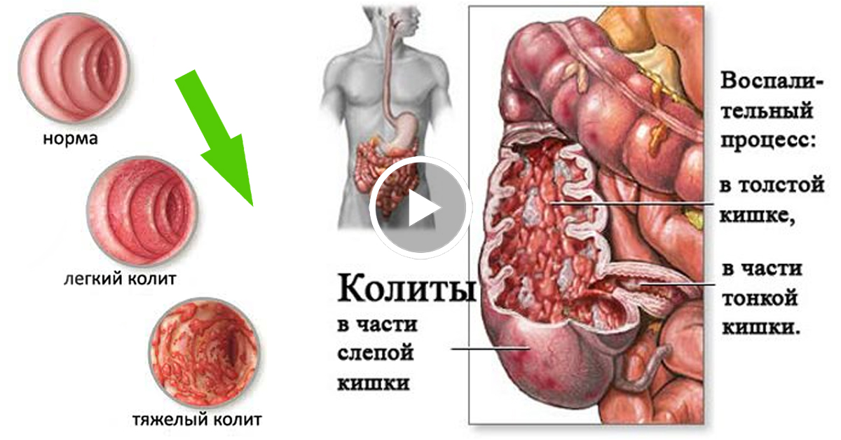 Клизмы при колите кишечника: лечебные травяные и масляные клизмы, отзывы