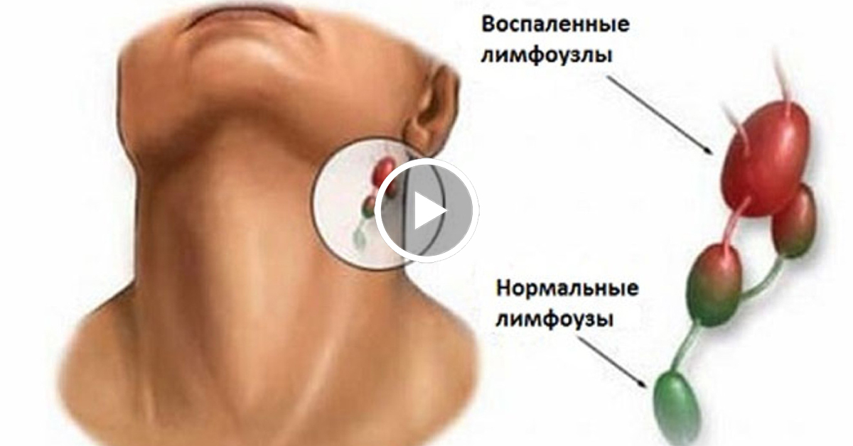 К чему может привести воспаление лимфоузлов