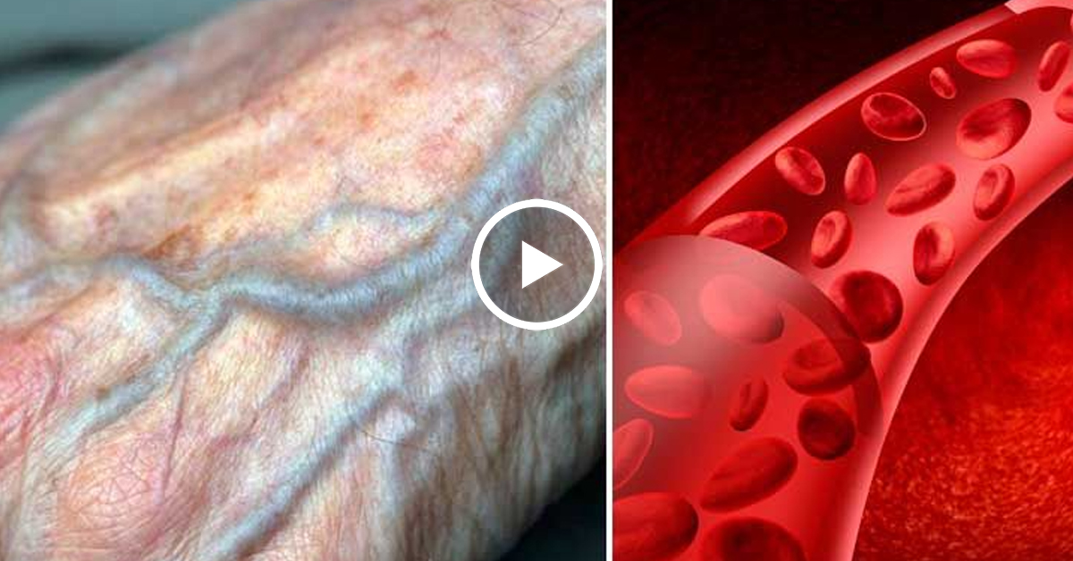 Плохое кровообращение в руках