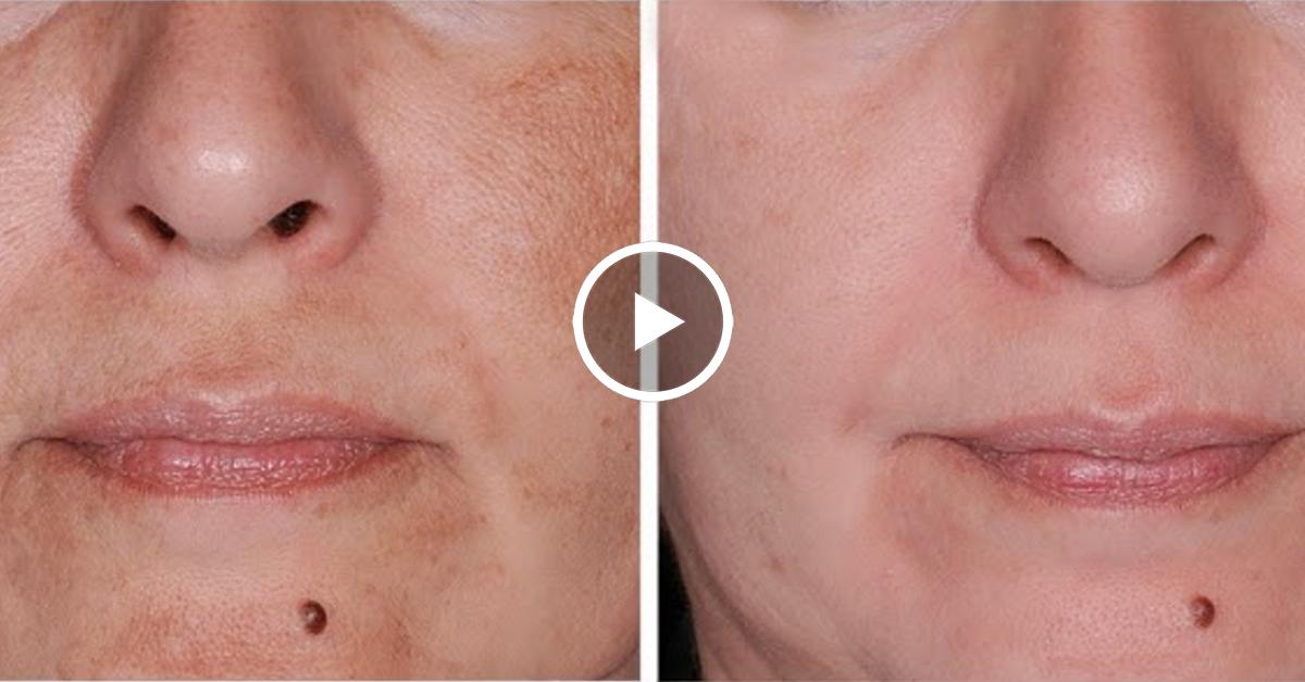 Рубцы на коже лица лечение народными средствами