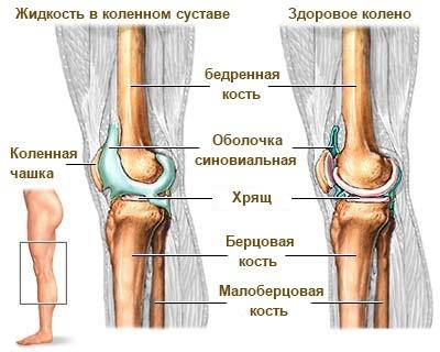 zhidkost-v-kolene