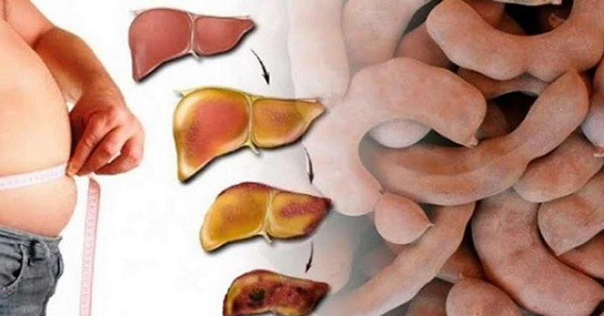 Сжечь Жир В Печени. Методы очищения печени от жира: обзор эффективных медикаментов