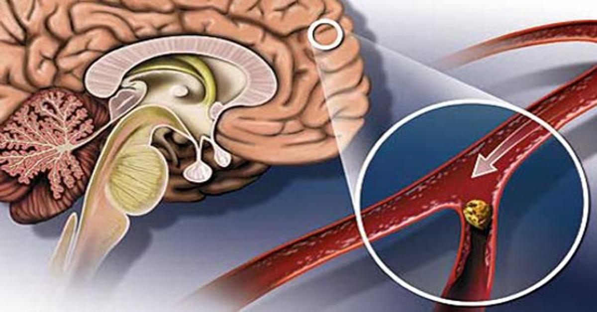 Что принимать при головокружении сосуды головного мозга