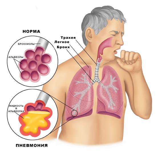 pneumonia_anatomy_pi