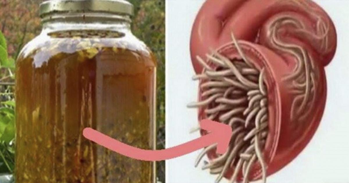 Liaudiškas vaistas nuo infekcijos, kirmelių ir parazitų