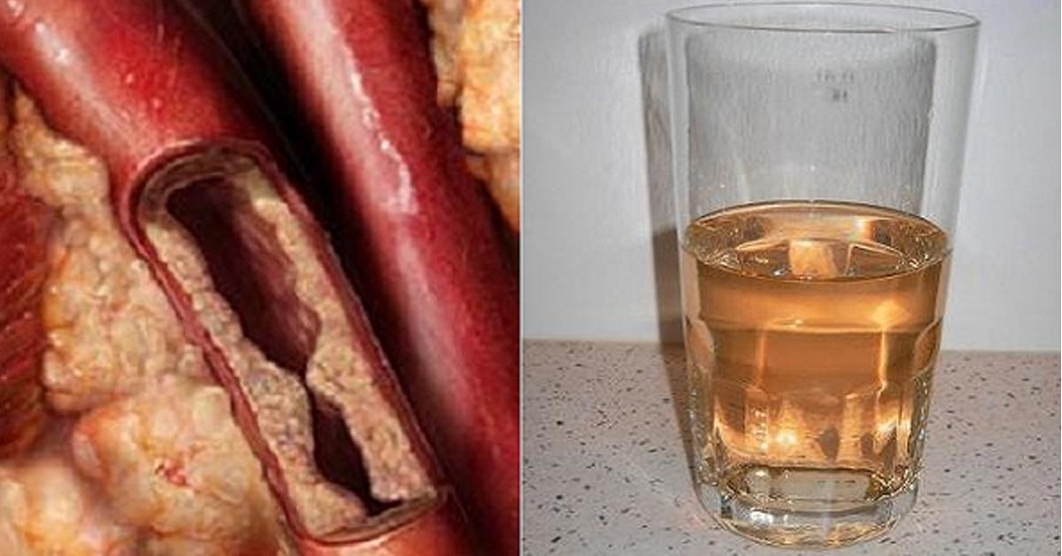 снижение холестерина водой