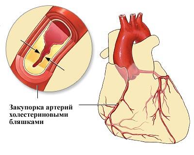 лекарство от холестерина статины названия