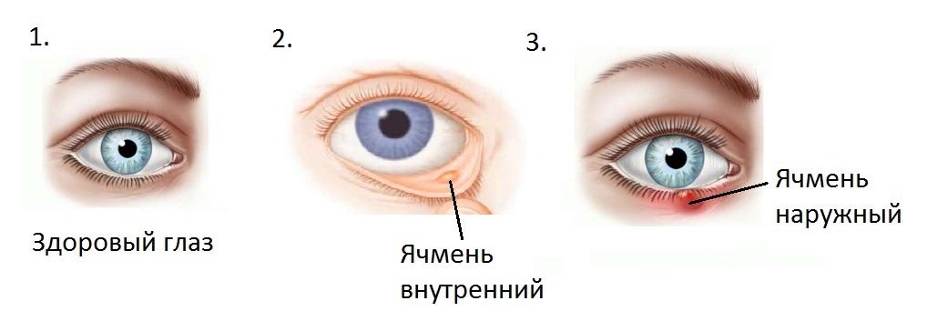 Московская область, ячмень в глазу как лечить Брэд