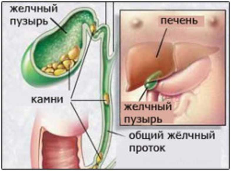 Камень в желчном пузыре и беременность