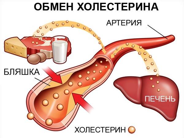 Нестенозирующий атеросклероз внечерепных брахиоцефальных артерии и лечение