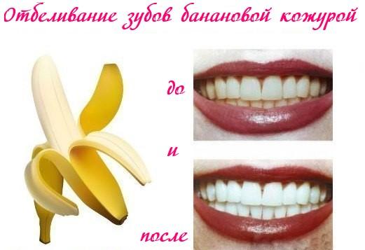 11 удивительных способов использовать цитрусовые и бананы!